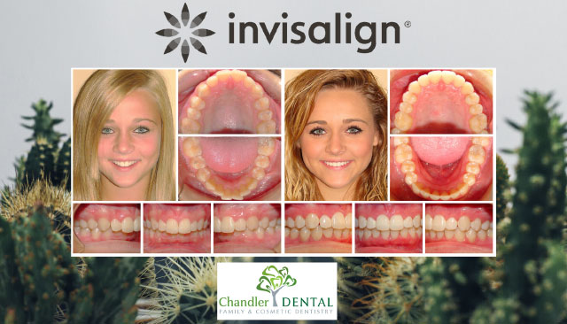 Before and After - Invisalign